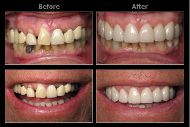 Uptown Dental » Cosmetic Dentistry
