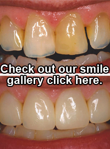 check out our smile gallery