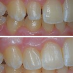 Conservative Direct Resin Veener on Young Patient
