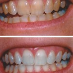 Cosmetic Tooth Whitening