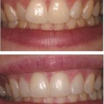 Crowded and mishapen teeth corrected using Direct Composite Resin Veneers.