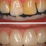 Dark and worn teeth to Direct Composite Resin Veneers