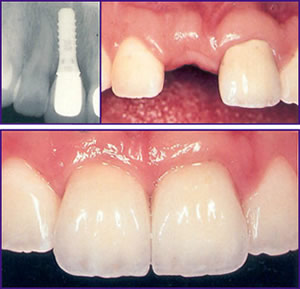dental implants showing mouth