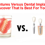 dentures versus implants