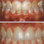 Excess tissue covering teeth and discolorations to Conserative Direct Resin Veneers
