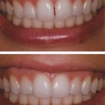 From deficient in size and contour to Direct Composite Resin Additions