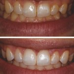 Excess Tissue removed using the Laser and Whitening