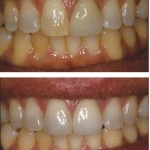 Oversized/Unesthetic crown (left central)Discolored Incisor (right central) to All Ceramic Crown (left central) Direct Resin Veneer (right central)