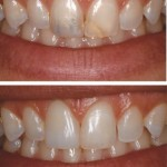 Pins present and restorations visible to Invisible Direct Resin Restorations