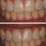 Restored discoloration with Direct Resin