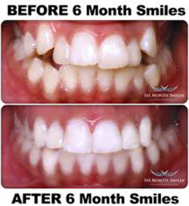 six month smile before