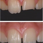 Restored fracture with Direct Resin