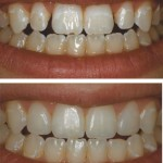 Tooth Whitening, Tissue and Enamel Reshaping, Conservative Direct Resin Veneers