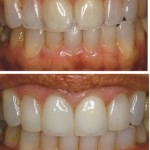 Unesthetic Crowns & Translucent Laterals treated with Direct Resin Veneers & All Ceramic Crowns