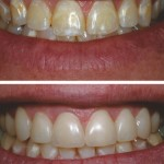 Various discoloration throughout to Direct Composite Resin Veneers