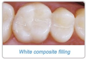 white_composite_filling