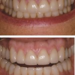 Full Mouth rehabilitation with All-Ceramic Crowns and Ceramic Veneers
