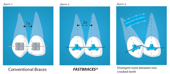 how does fastbraces work